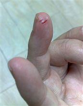 アナタが咬んだぁ~薬指が痛いぃ~♪
