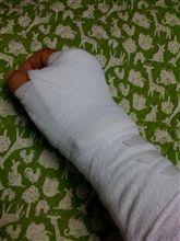 狭窄性腱鞘炎になる。