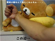 負傷・・・つД`)・゚・。・゚゚・*:.。..。.:*・゚