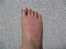 噛まれた足その後