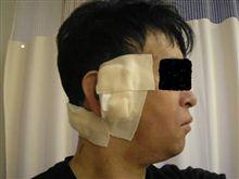 カテーテル抜去手術を受けました。