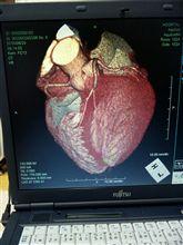 心臓検査・・・・