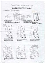 昨日(7/1)歯医者の治療がやっと終わった