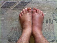 右足骨折しました・・・。