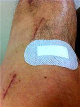 膝関節グリースアップ