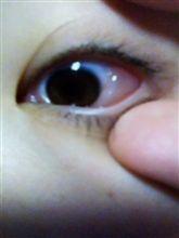 ぎゃーーー!白目が腫れた