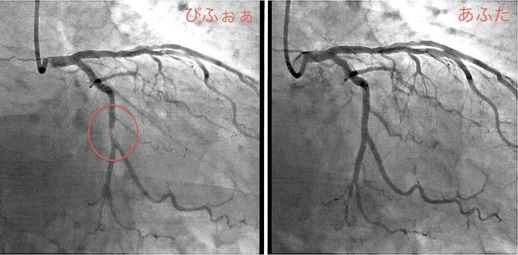 心臓 ステント 手術