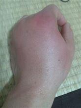 原因不明の 痛みと腫れ