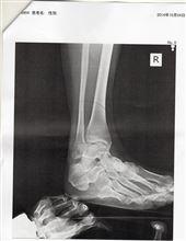 右足首骨折