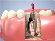 銀歯から激痛が(T_T)