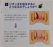 ジーク ジオン!! 痔の手術 ジオン注 1日目   続①