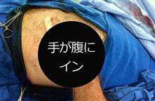 ブラックジャックかよ!重機で手を負傷した男性、腹の中に収め治癒力高める