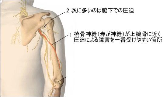 とう こつ 神経 麻痺 橈骨神経麻痺の症状・原因・治療・リハビリ
