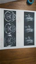痺れ(MRI検査)
