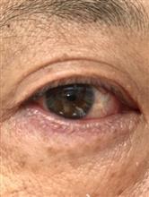 目が…(>_<)