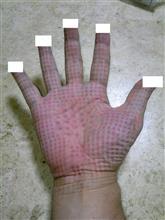 マッサージ器の痕