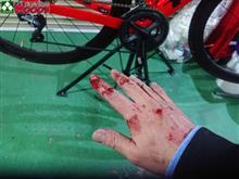自転車事故(自爆)から、ほぼ復活したのに洗車できない・・・