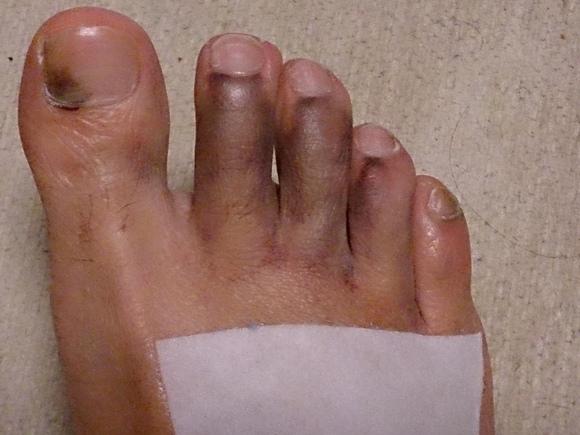 の 指 黒い 足