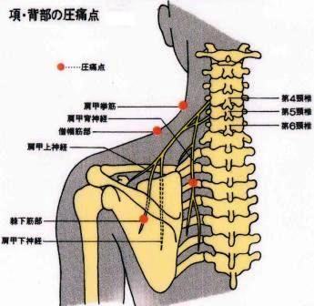 右 首 から 肩 にかけて の 痛み