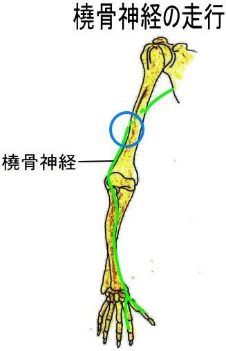 走行 橈骨 神経 橈骨神経麻痺